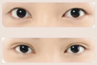 玉林割双眼皮的优势