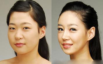 玉林华美-广西玉林瘦脸针注射患者真心感谢八大处整形整形