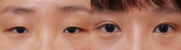 玉林华美整容-双眼皮手术后应如何护理呢