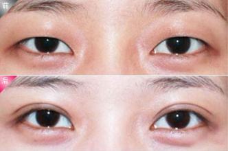 玉林华美整容-双眼皮手术的适宜人群都有哪些呢?