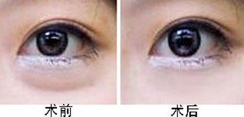 玉林华美—广西眼袋去除手术会有什么影响吗?