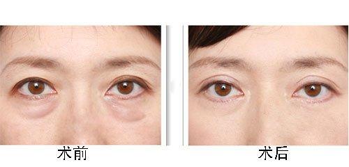 玉林华美—玉林,关于眼袋你了解多少?
