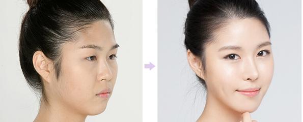 玉林华美—玉林如何做好鼻翼缩小术的护理工作?