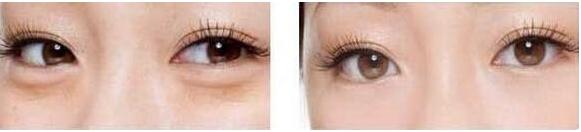 玉林华美—玉林祛眼袋需要多少费用?