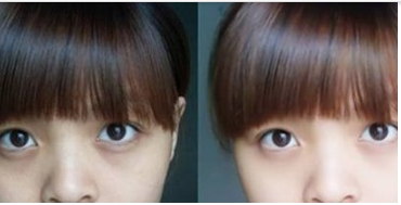 玉林华美—玉林黑眼圈去除有哪些方法?