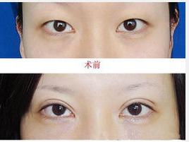 玉林华美—玉林割双眼皮如何判断是否成功?