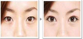 玉林华美—玉林割双眼皮哪种更好?