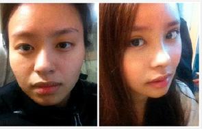 玉林华美—玉林重脸术的小秘密你知道吗?