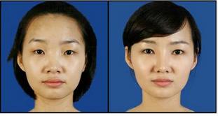 玉林华美—玉林做双眼皮分季节吗?