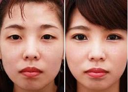 玉林华美—玉林厚脸皮做双眼皮OK吗?