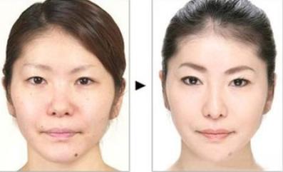 玉林华美—玉林韩式隆鼻会有什么不好吗?