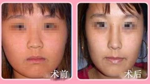 玉林华美—玉林驼峰鼻矫正的恢复时间