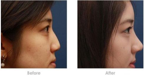 玉林华美—玉林驼峰鼻矫正的适用人群