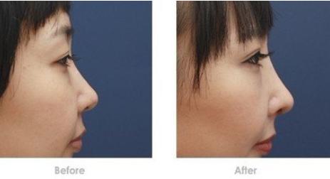 玉林华美—玉林驼峰鼻矫正术后小贴士