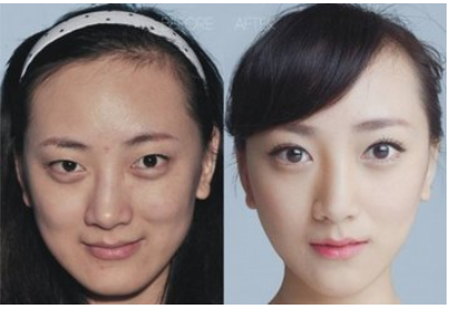 玉林华美—玉林驼峰鼻矫正手术原理