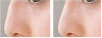 玉林华美—玉林驼峰鼻矫正的常见方式