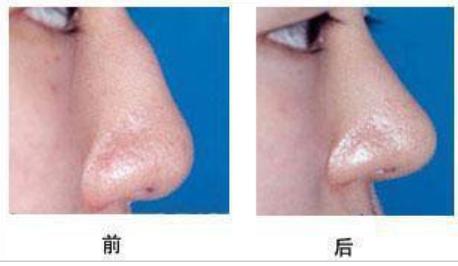 玉林华美—玉林驼峰鼻矫正的效果