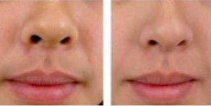 玉林华美—玉林鼻翼缩小的效果如何?