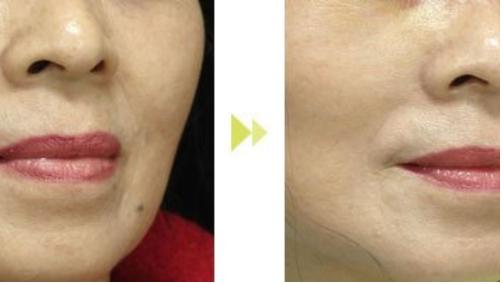 玉林华美—玉林鼻唇沟纹的应对方法