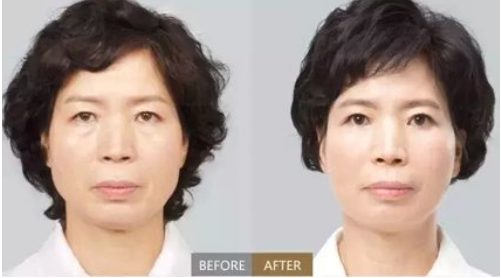 玉林华美—玉林消除鼻唇沟纹的措施