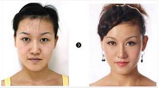 玉林华美—玉林鼻子整形是如何进行的?