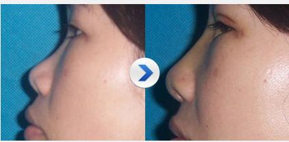玉林华美—玉林自体软骨隆鼻的特点