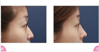 玉林华美—玉林适合自己的隆鼻材料