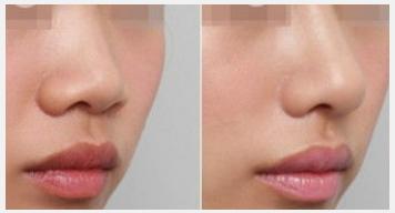 玉林华美—玉林假体塑鼻的优点有哪些?
