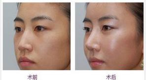 玉林华美—玉林隆鼻手术的误区你知道吗?