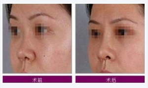 玉林华美—玉林隆鼻方法的比较说明