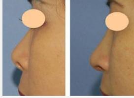 玉林华美—玉林短鼻延长术是什么?