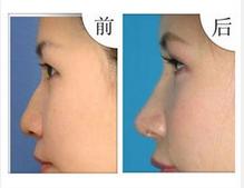 玉林华美—玉林短鼻延长术的原理是什么?