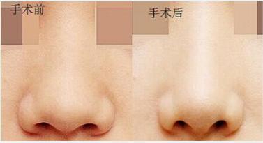 玉林华美—玉林鼻子宽该如何解决呢?