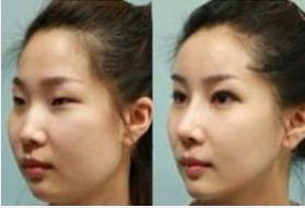 玉林华美—玉林鼻骨缩小术前术后小贴士