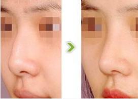 玉林华美—玉林鼻骨缩小术的效果如何?