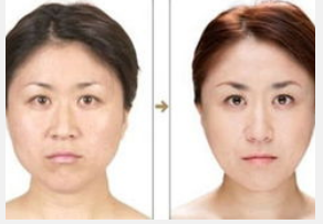 玉林华美—玉林鼻骨缩小术的过程是怎样的?