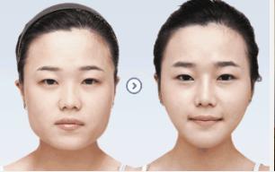 玉林华美—玉林注射肉毒素瘦脸的效果