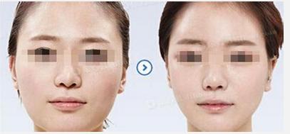 玉林华美—玉林面颊吸脂术的过程是怎样进行的?