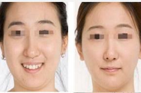 玉林华美—玉林面部吸脂的手术步骤