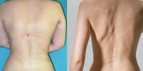 玉林华美—玉林背部吸脂术的过程是怎样的?