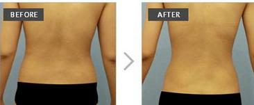 玉林华美—玉林背部吸脂术的关键点