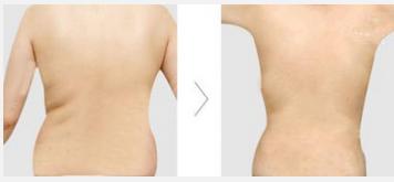 玉林华美—玉林背部吸脂的效果