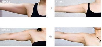 玉林华美—玉林瘦手臂的方法