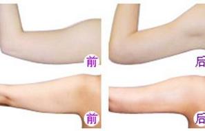 玉林华美—玉林手臂吸脂的禁忌