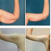 玉林手臂吸脂的方法