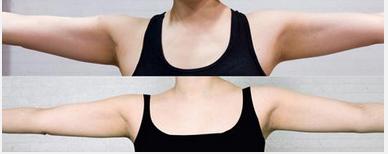 玉林华美—玉林手臂吸脂的流程步骤