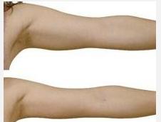 玉林华美—玉林手臂吸脂会有什么副作用吗?