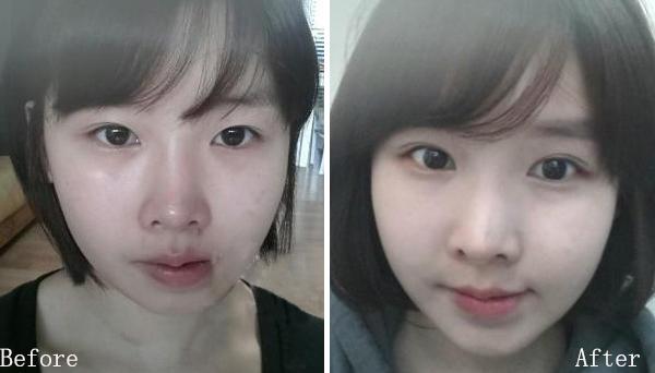 杭州韩式开眼角效果自然吗