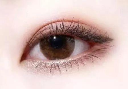 割双眼皮为什么会有肉条?